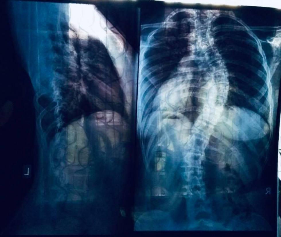 Рентгенівський знімок