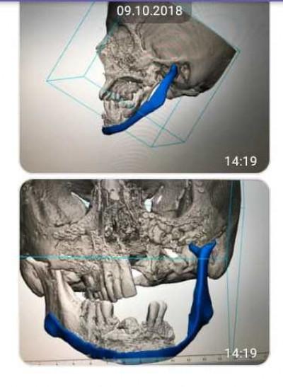 Знімки травмованої щелепи
